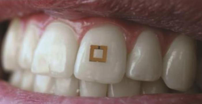 dişe takılan sensör
