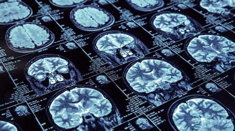 Beyin Gelişimi IQ Artışı 2