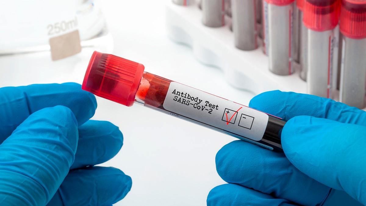 20 Dakikada Sonuç Veren Antikor Testi Geliştirildi -2