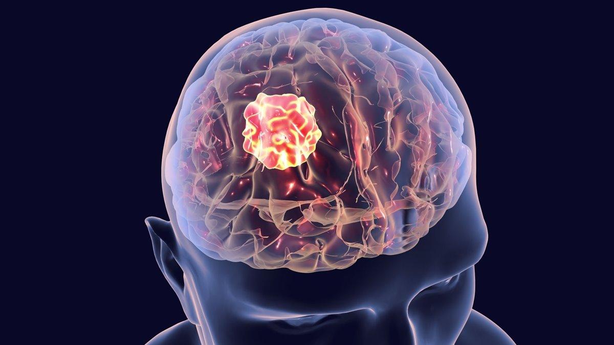 Beyin Tümörünü Küçülten Manyetik Kask Geliştirildi!