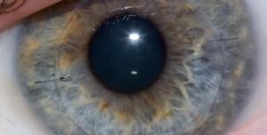 Körlük Tarihe mi Karışıyor? Yapay Kornea ile Gözleri Açıldı