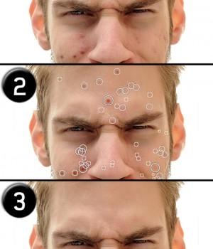 Pimple Eraser 1 - 1