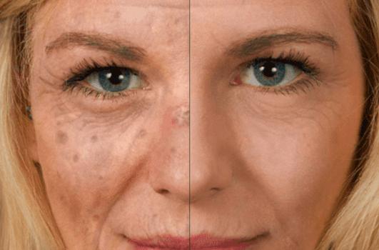 Sunface - UV-Selfie 1 - 1