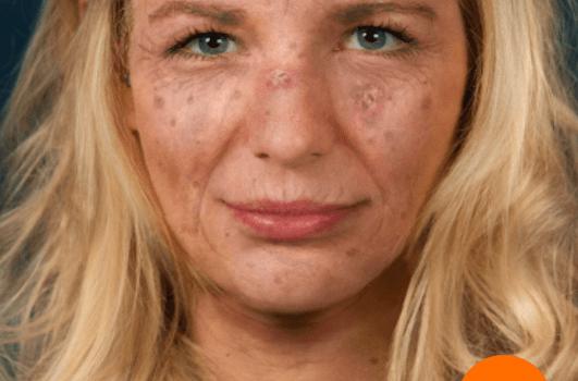 Sunface - UV-Selfie 4 - 4