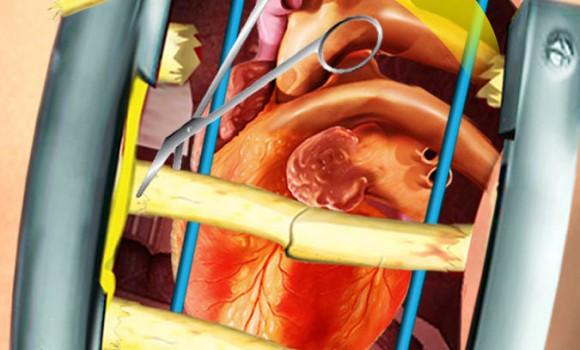 Open Heart Surgery Simulator Ekran Görüntüleri - 2