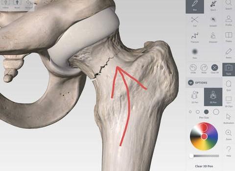 Complete Anatomy Ekran Görüntüleri - 1