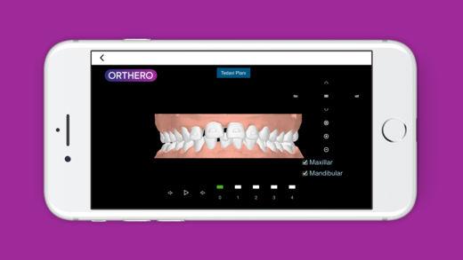 ORTHERO DR Ekran Görüntüleri - 1