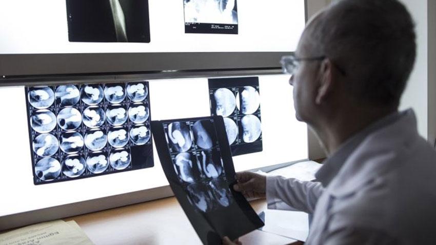 Renkli Üç Boyutlu Röntgen Teknolojisi