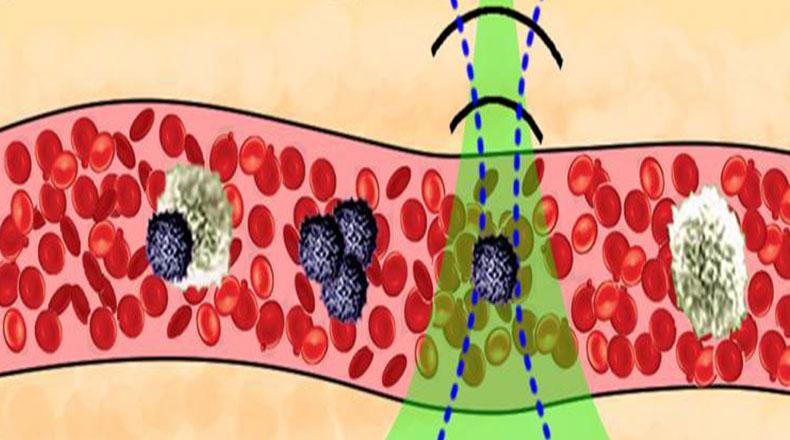 Kanserli Hücreleri Yok Eden Yeni Lazer Tedavisi 2