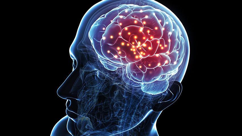 Beyin İmplantı 1