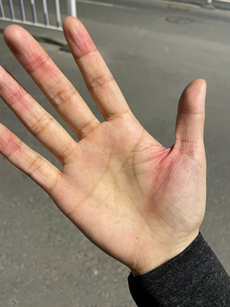iPhone 12 Elleri Yaralıyor Mu?2