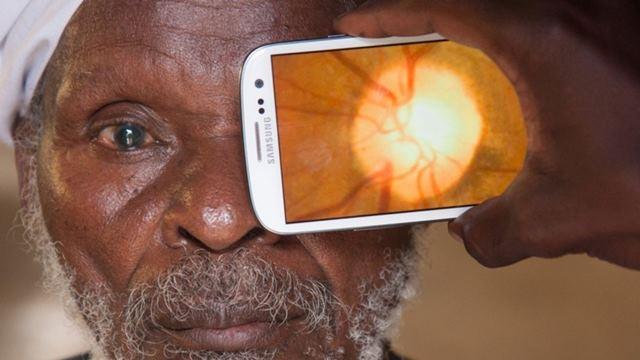 Peek Retina ile Akıllı Telefondan Göz Muayenesi Mümkün Hale Geliyor