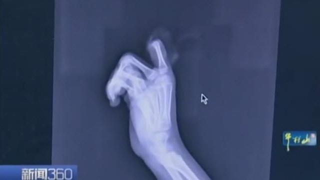 Küçük Çocuk Telefon Bağımlılığı Yüzünden Kendi Parmağını Kesti!