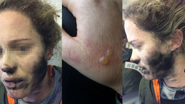Uçuş Sırasında Patlayan Kulaklık Paniğe Yol Açtı ve Sahibini Yaraladı