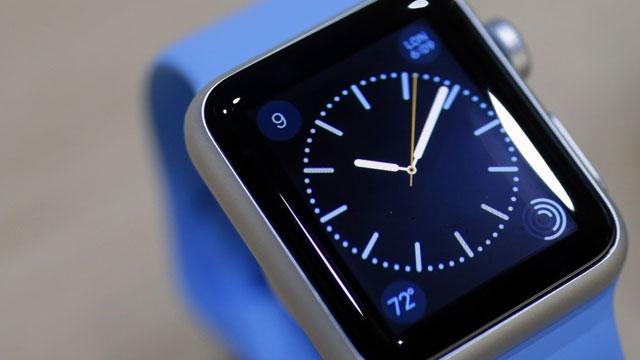 Apple Watch İstediniz ve Yok mu Dediler? Artık Apple Watch Türkiye'de