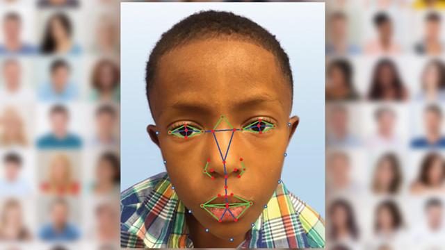 Yüz Tanıma Teknolojisi, Genetik Hastalıkların Teşhisinde Kullanılacak